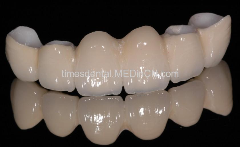 Dental Full Ceramic Zirconium Crown BridgeZirconium Crown
