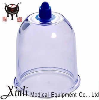 cupping therapy, Chinese cupping